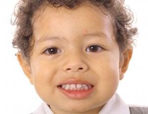 fluoride varnish child