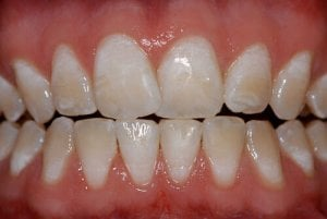 moderate mild dental fluorosis picture
