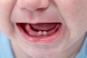 Gap between milk teeth
