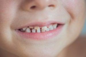 rotten baby teeth