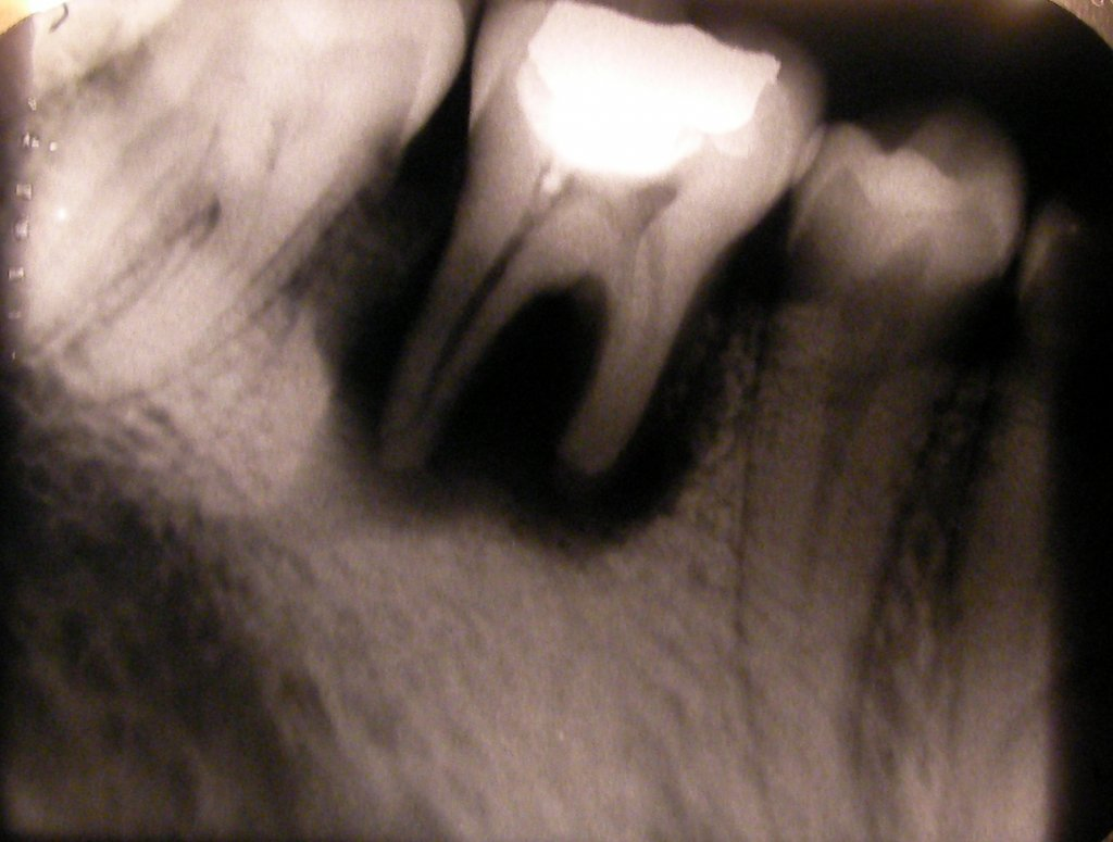 X-ray showing tooth resorption