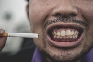 No smoking for 72 hours after tooth extraction