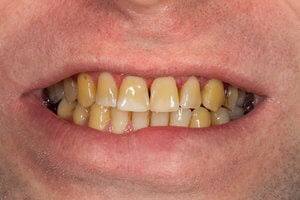 Yellow stained teeth from smoking
