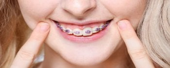 How and Why DIY Braces are Dangerous