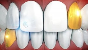 anterior implants with gold teeth implants