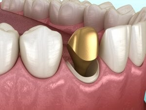 Permanent gold tooth implant