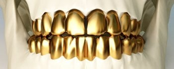 permanent gold teeth implants