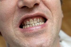 tetracycline staining of teeth