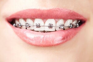 how to apply wax on braces