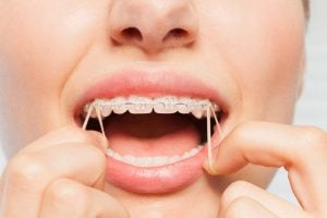 rubber bands for braces pain