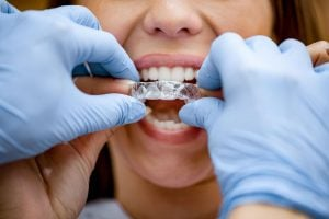 how to fix crooked teeth at home