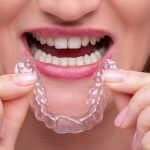 35570Wisdom Teeth Guide: Do You Need Them Removed, and How Much it will Cost