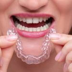 35570How to Get Free Dental Implants Through Programs and Charities