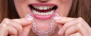 straighten teeth at home