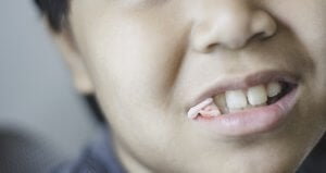 how long to keep gauze in after tooth extraction