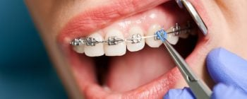 how are braces tightened