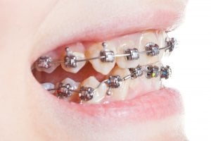 Cost of braces for adults