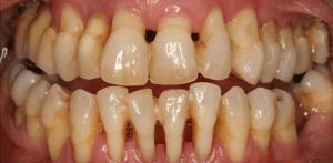 advance gum disease