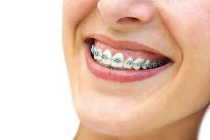 De belles bagues en métal pour un joli sourire