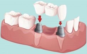 Bridge dentaire pour refaire des dents.