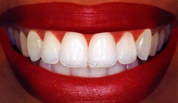 dentaly