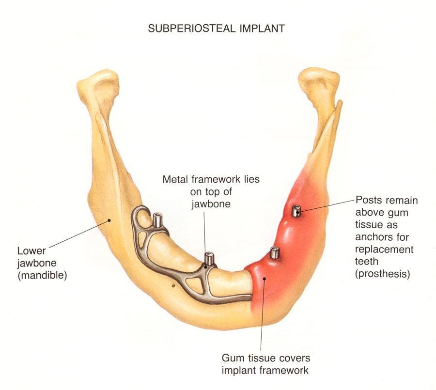 implant subperiosteral