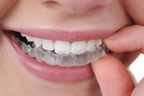 invisalign-blog-photo