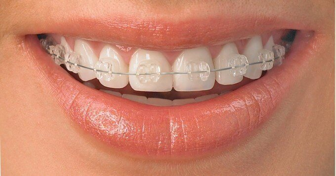 prix appareil orthodontie