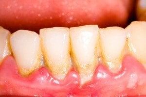 plaque jaune sur la langue