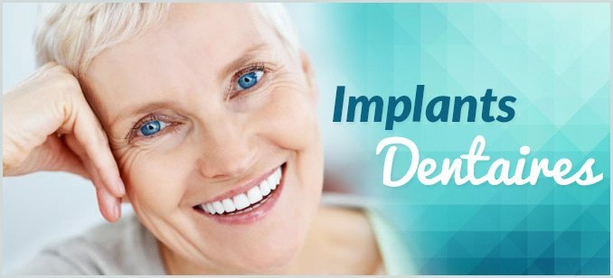 Implants-Dentaires-Dentaly