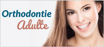 Orthodontie-Adulte-Dentaly
