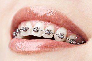 bigstock-teeth-with-braces-21858767