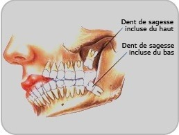 voila comment sont retirer les dents de sagesse