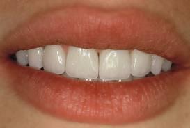 nouvelles dents