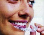 L'orthodontie pour adultes