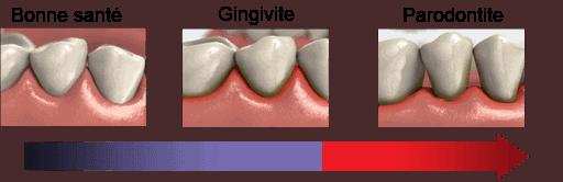 L'évolution de la parodontite