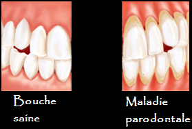 Avant et pendant une parodontose