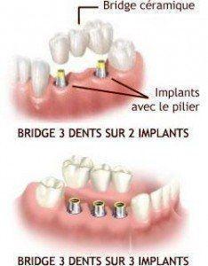 Bridge dentaire prix