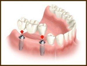 Bridge sur implant