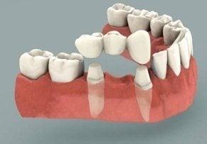 prothèse dentaire le bridge