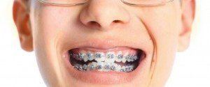 Bagues dentaires en métal