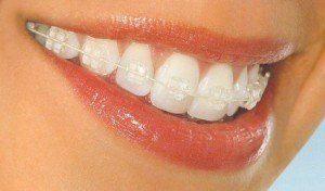 Bague ceramique blanche dent
