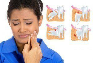 Symptômes des dents de sagesse