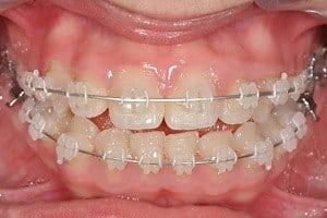 pril_c_traitement_orthodontique_bagues_ceramiques