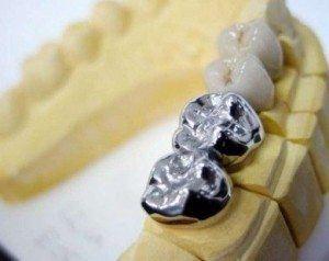 Couronne dentaire en métal