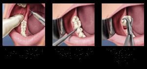 L'extraction dentaire en détails