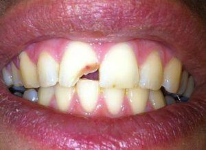 Que faire lorsqu'une dent est cassée