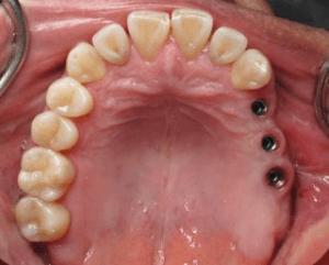 dentier sur implant prix