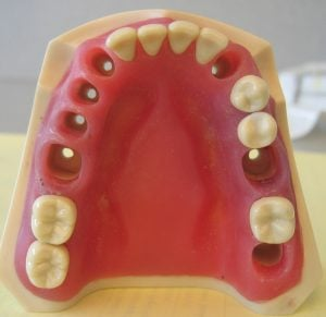 Implant dnetaire