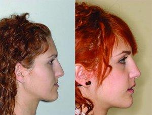 Comparaison prognathie avant et après opération